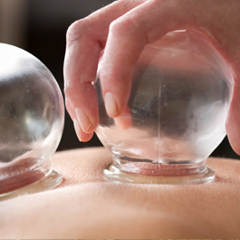 Cupping - Chinese Medicine - Treatment