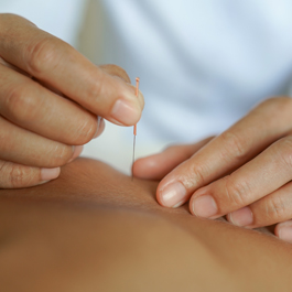 Dry Needling - Trigger Point Therapy - IMS Treatment